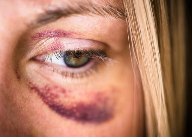 Почему появляются синяки после уколов и как их убрать